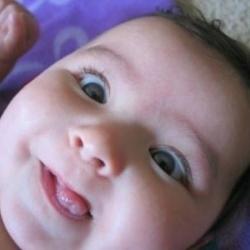 Cross-eyed-baby